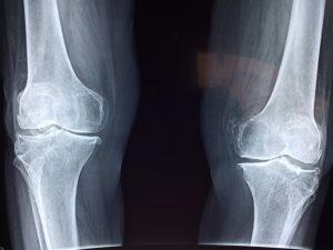 Des os plus solides